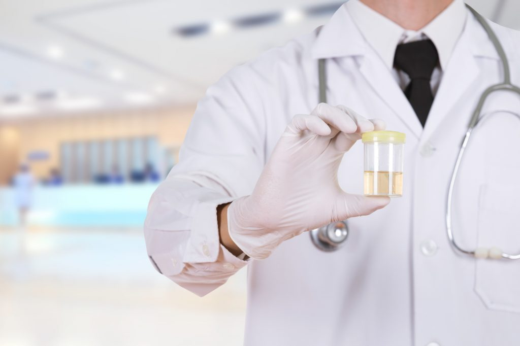 What Employers Should Know About Workplace Drug Testing
